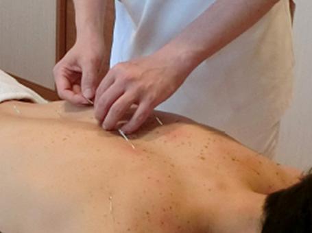 鍼療法イメージ