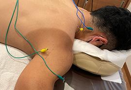 鍼通電療法(パルス療法)